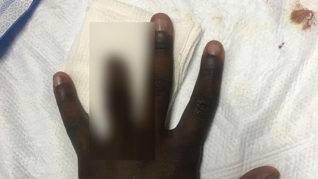Chandler Smith loses tip of ring finger (via Instagram)