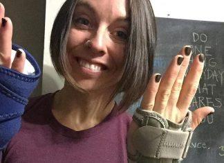 Alyssa Ritchey wearing wrist splints to treat bilateral carpal tunnel syndrome. @alyssaritchey1/Instagram